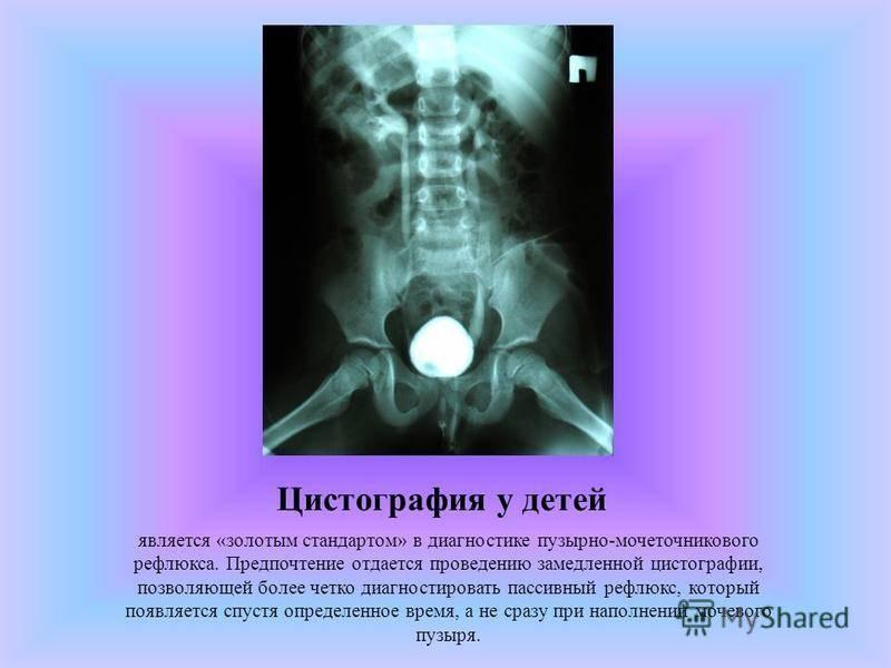 Рентген мочевого пузыря с контрастом: как делают, что показывает?   компетентно о здоровье на ilive