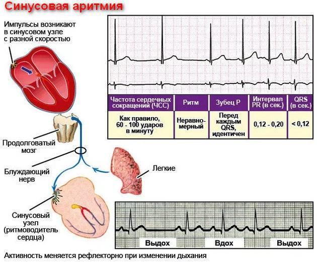 Нарушения ритма. аритмии. лечение аритмии. коррекция нарушения ритма сердца - медицинский центр «эхинацея»
