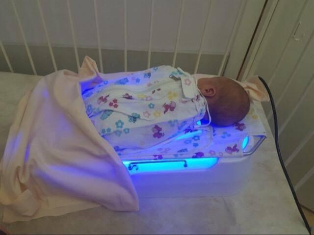 Детская желтушка (желтуха) у новорожденных лечение | fortis
