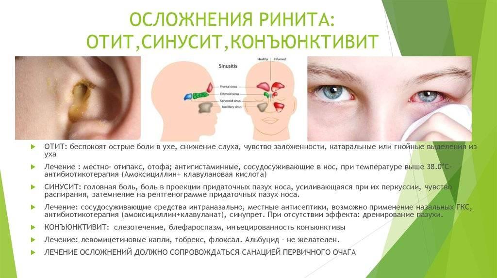 Хроническая заложенность носа: когда нужен врач, причины и лечение