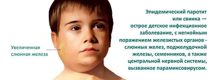 Свинка или эпидемический паротит. что делать, если у ребенка паротит?