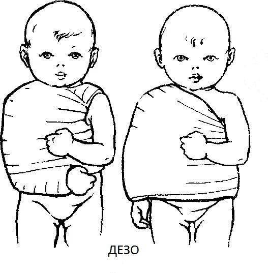 Родовые травма у новорожденных детей, причины, цнс, лечение в москве