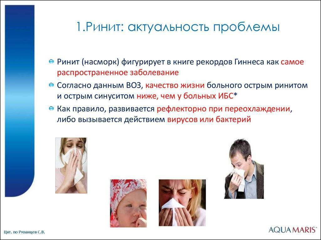 Ринит: симптомы и признаки синдрома, лечение у взрослых - причины, диагностика и лечение