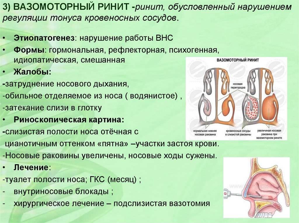 Вазотомия как метод лечения хронических воспалительных заболеваний полости носа