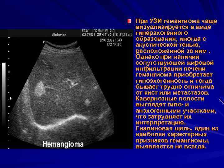 Диагноз «цирроз печени» - что нужно знать?