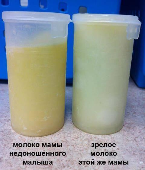Грудное молоко желтого цвета: что это значит, нормально ли это?