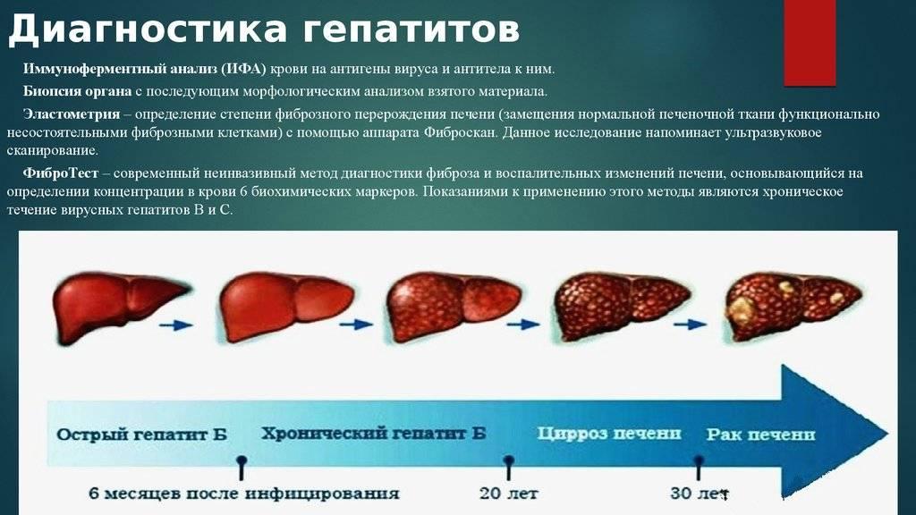 Фиброз печени – лечение болезни, прогноз