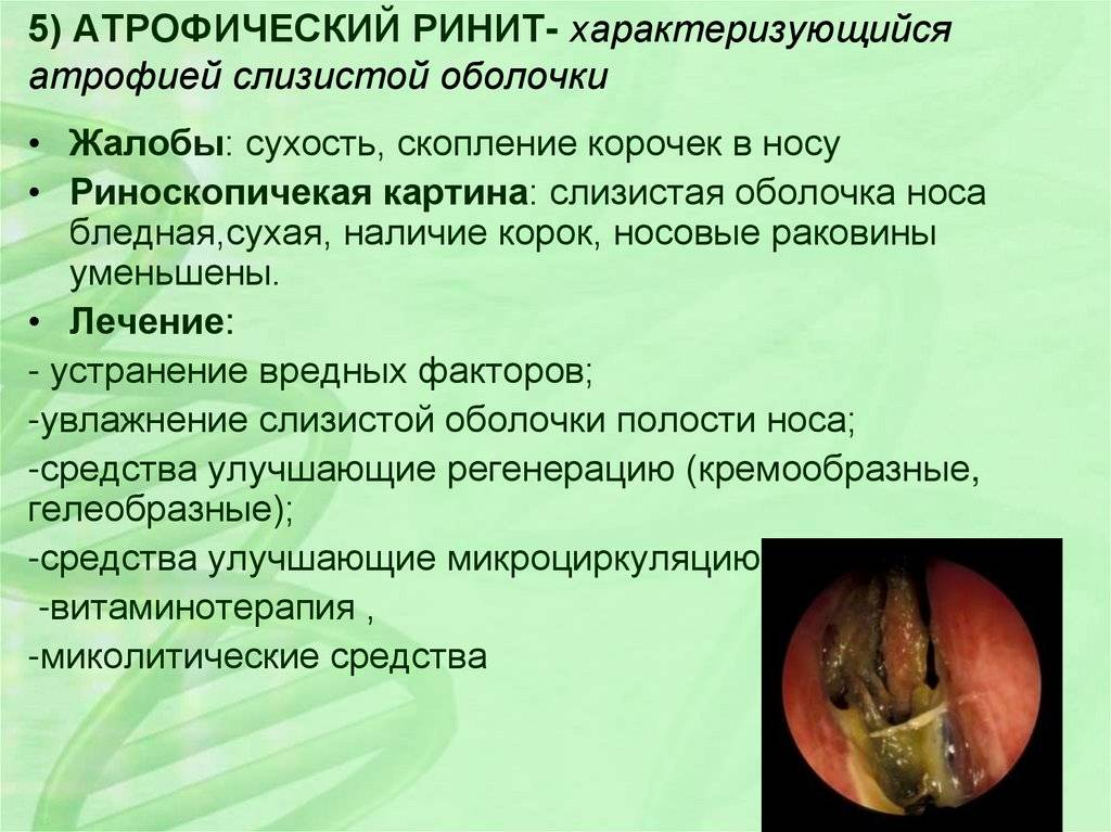 Насморк и заложенность носа у детей: причины, симптомы и лечение