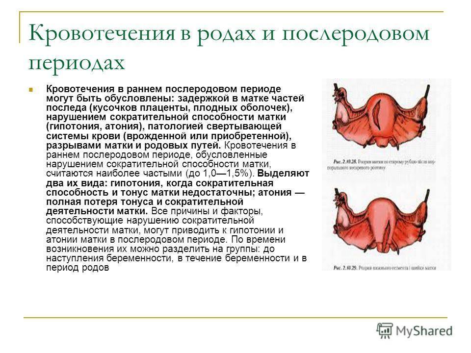 Гипоплазия матки: что это и можно ли забеременеть с такой патологией?