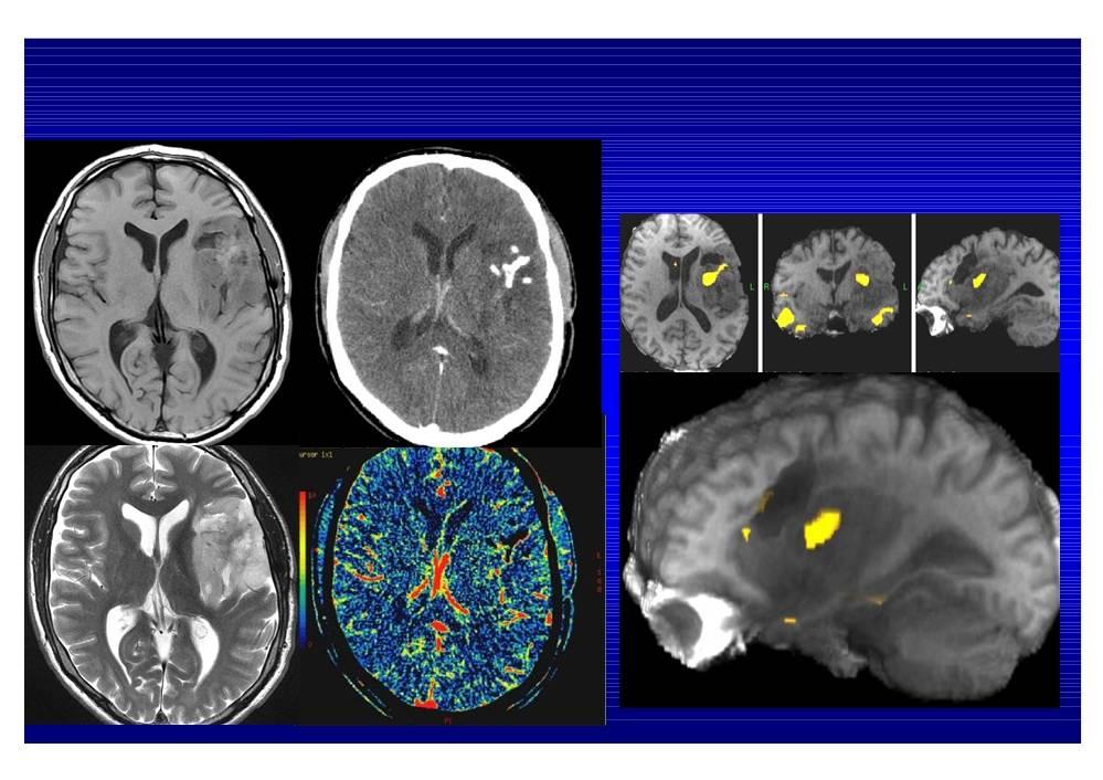 Симптомы опухоли головного мозга на ранних стадиях, первые признаки рака головного мозга
