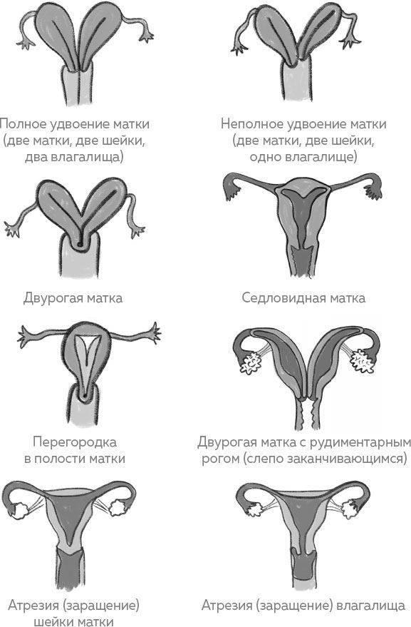 Возможна ли беременность при седловидной матке?