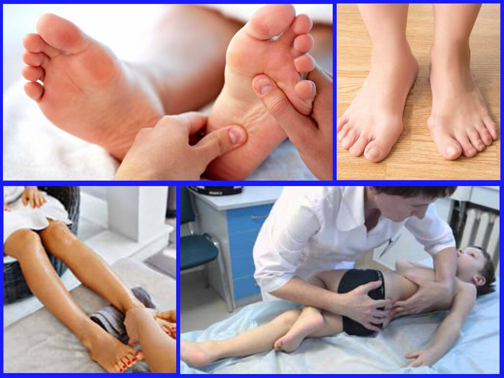 Лечебная физкультура при артрозах нижних конечностей | центр дикуля