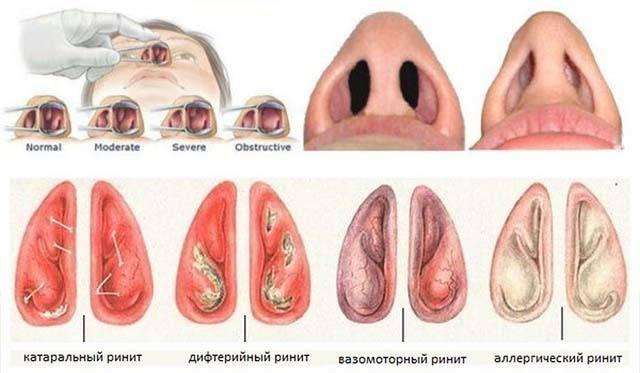 Воспаление аденоидов у детей: симптомы и лечение