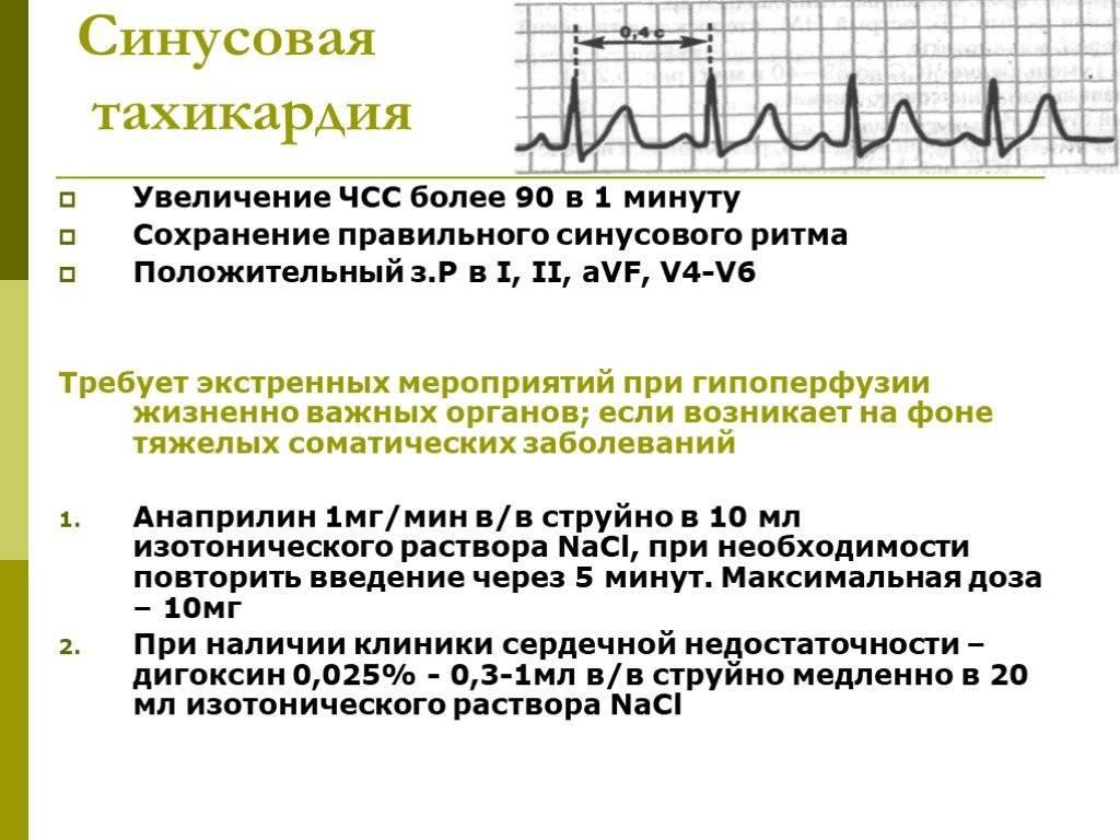 Тахикардия сердца - причины, симптомы, диагностика и лечение патологии - причины, диагностика и лечение