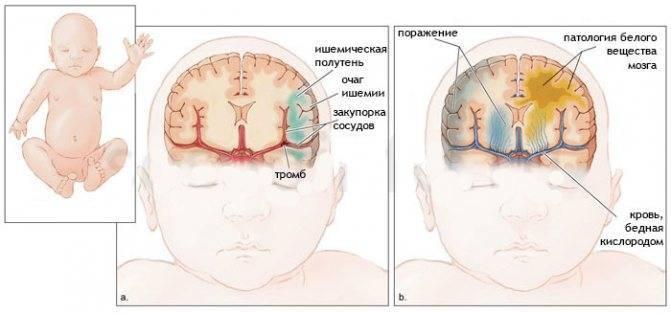 Перинатальное поражение центральной нервной системы