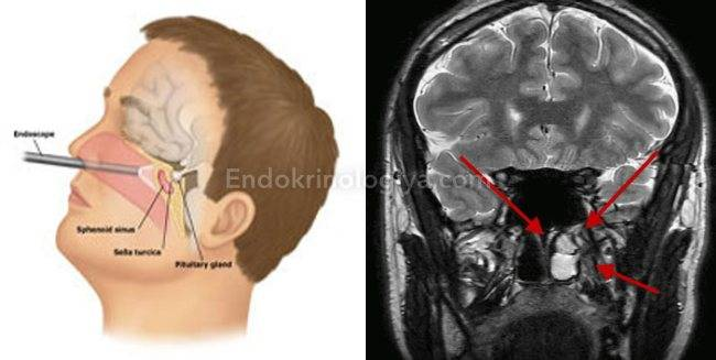 Киста головного мозга у новорожденного: лечение и последствия