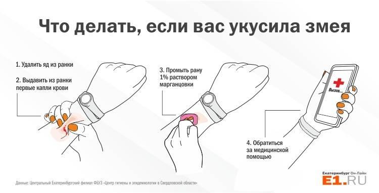 Укус гадюки: первая помощь, противоядие   компетентно о здоровье на ilive