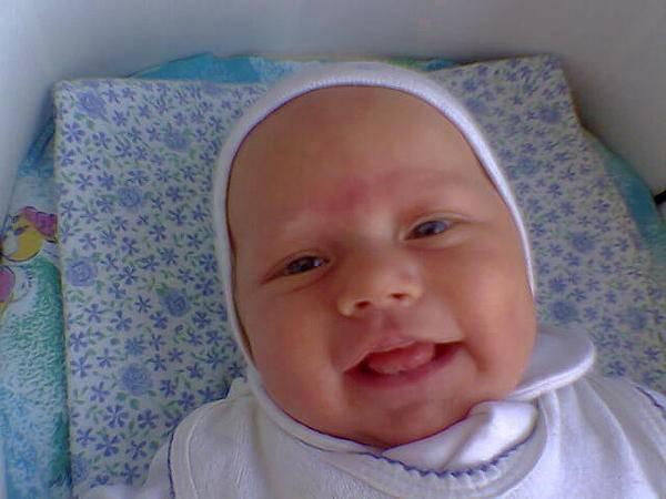 Почему у грудничка синеет носогубный треугольник: причины цианоза и коррекция состояния новорожденного ребенка