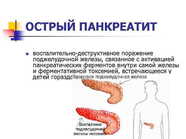 Хронический панкреатит: симптомы и лечение – напоправку – напоправку