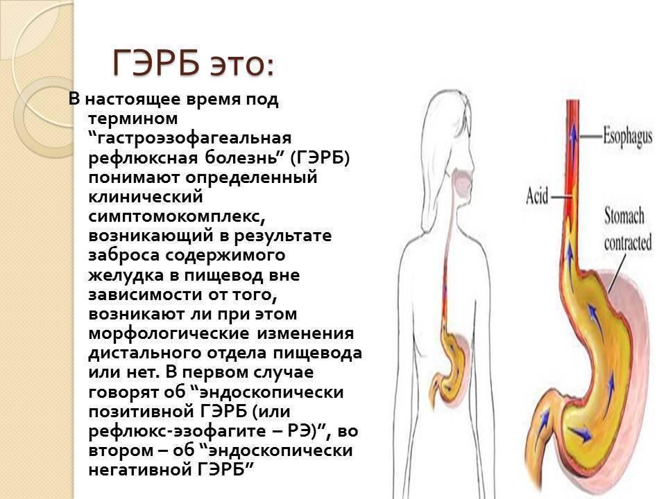 Желудочно-пищеводный рефлюкс – мастер маскировки