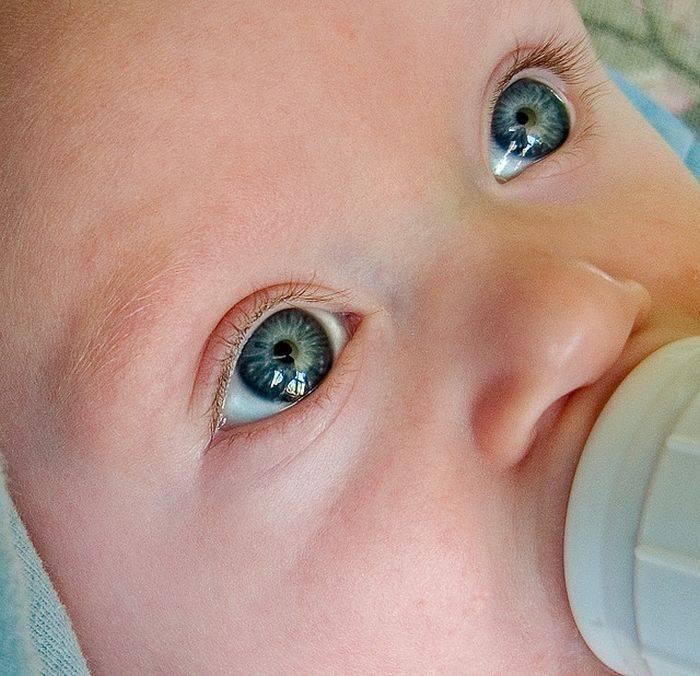 Желтуха - почему желтеют кожа и глаза | университетская клиника