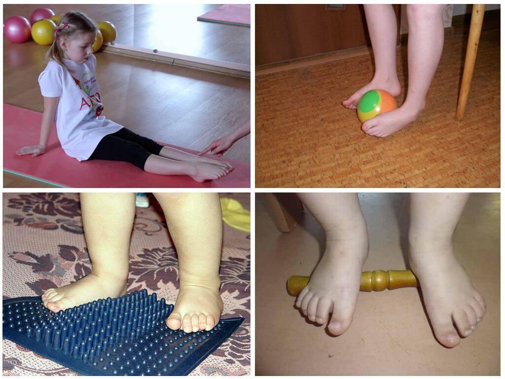 Лечение вальгусной (плосковальгусной) стопы у ребенка – методы устранения деформации конечностей