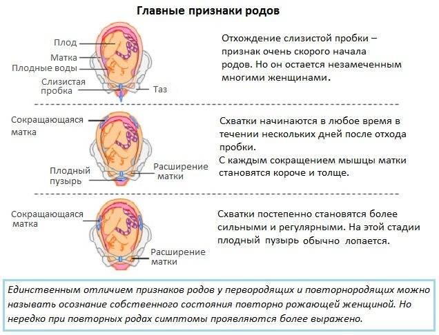➤ предвестники родов у повторнородящих
