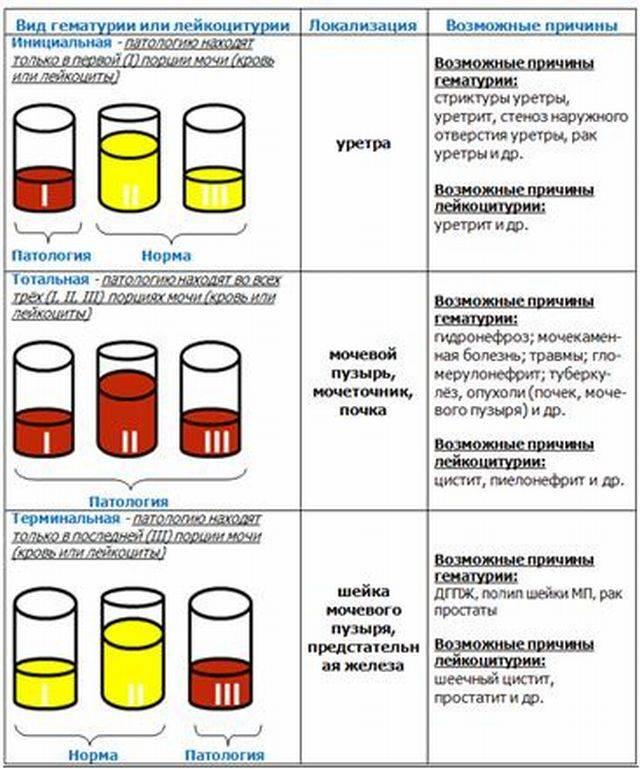 Стрептококки в мазке у женщин, при беременности, мужчин и детей