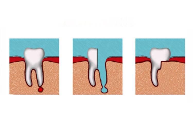 Что делать после удаления зуба для быстрого заживления