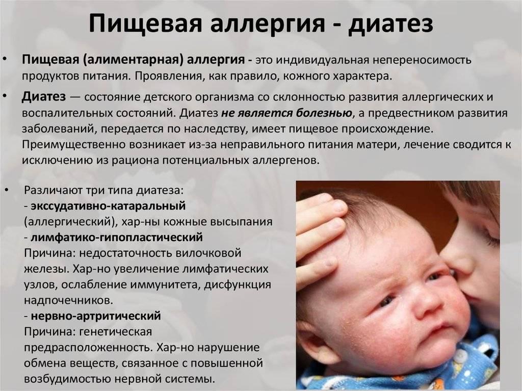 Болезни кожи у новорождённых: 7 различных проявлений