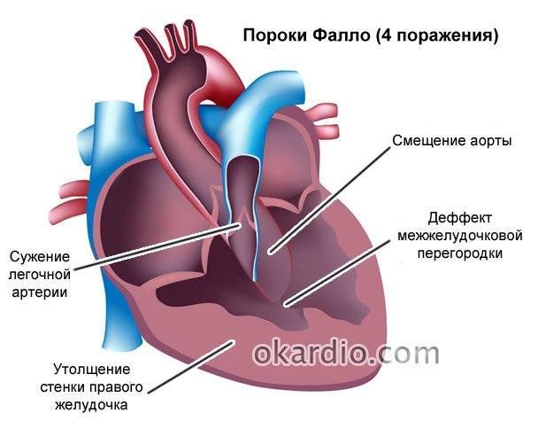 Детское сердце