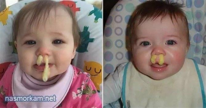 Насморк у ребёнка: как лечить зеленые, желтые или прозрачные сопли?