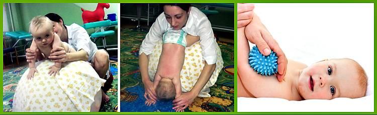 Лечение гипотонуса мышц у ребенка в оренбурге в центре эскулап+