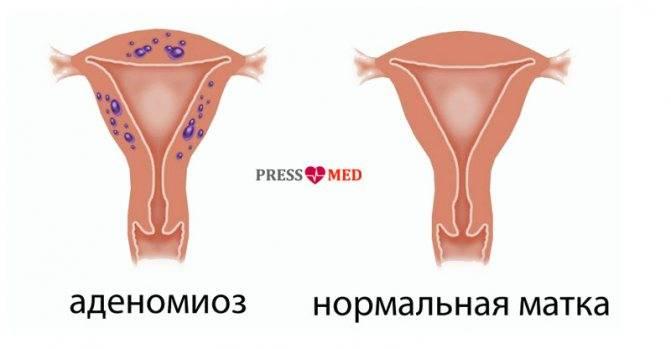 Лечение аденомиоза у женщин недорого в москве