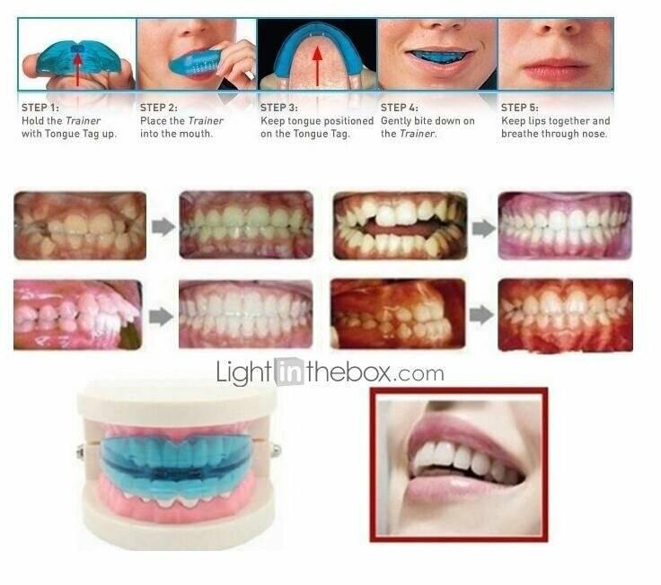 Съемные ортодонтические аппараты