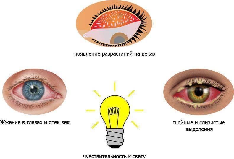 Глазные болезни у детей, узнайте про детские болезни глаз.