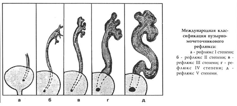Пузырно-мочеточниковый рефлюкс у детей (пмр)  лечение, диагностика, операции — николаев василий викторович