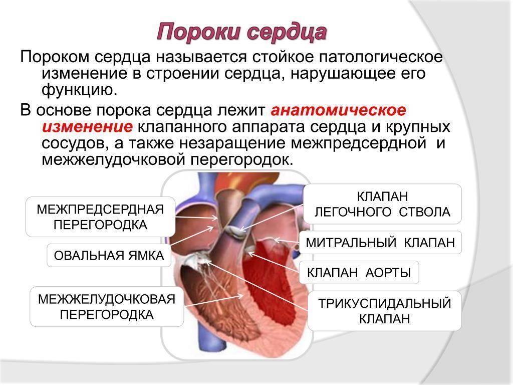Врожденные пороки сердца. общие сведения.