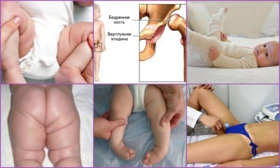Узи тазобедренных суставов для новорожденных: как проводится и зачем нужно