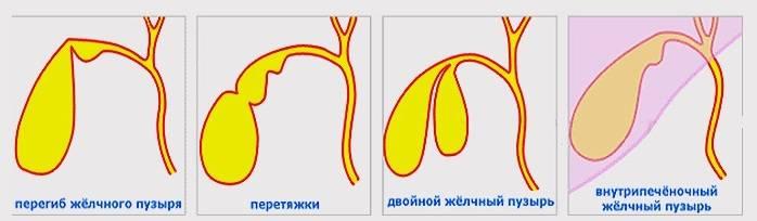 Перегиб шейки желчного пузыря: причины, симптомы и лечение