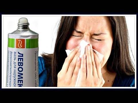 Заложенность носа у ребенка: лечение народными средствами и препаратами
