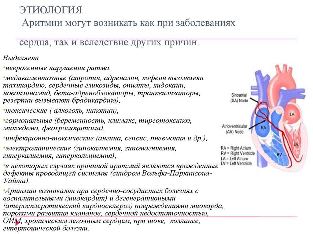 Синусовая аритмия у детей - полезные статьи отделения педиатрии ао «медицина» (клиника академика ройтберга)