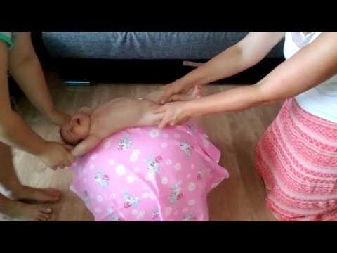 Кривошее у новорождённых, что делать