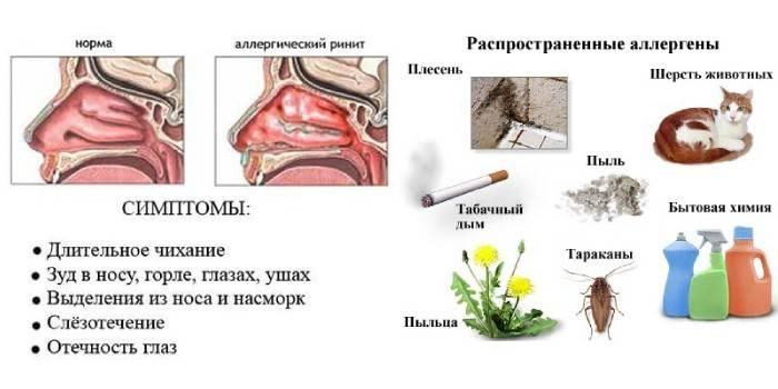 Медикаментозный ринит – опасные осложнения и лечение в цэлт