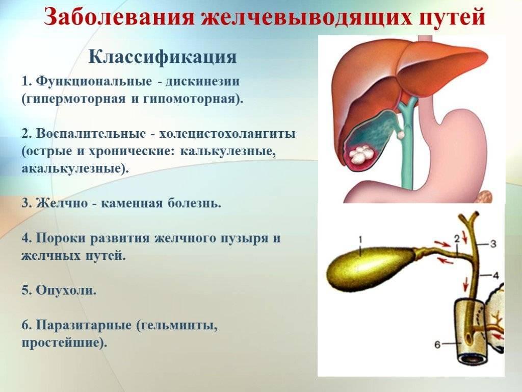 Дискинезия желчевыводящих путей у детей: симптомы, причины, диагностика