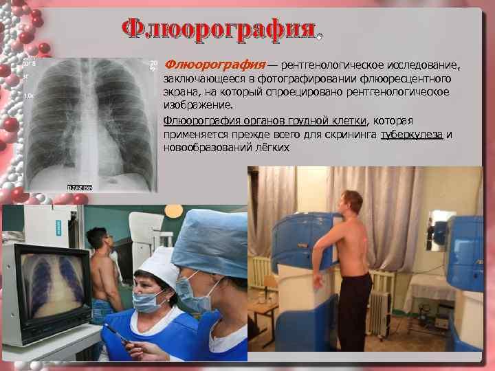 В каких случаях после флюорографии врач может отправить пациента на рентген, и могут ли оба обследования проводиться в один день?