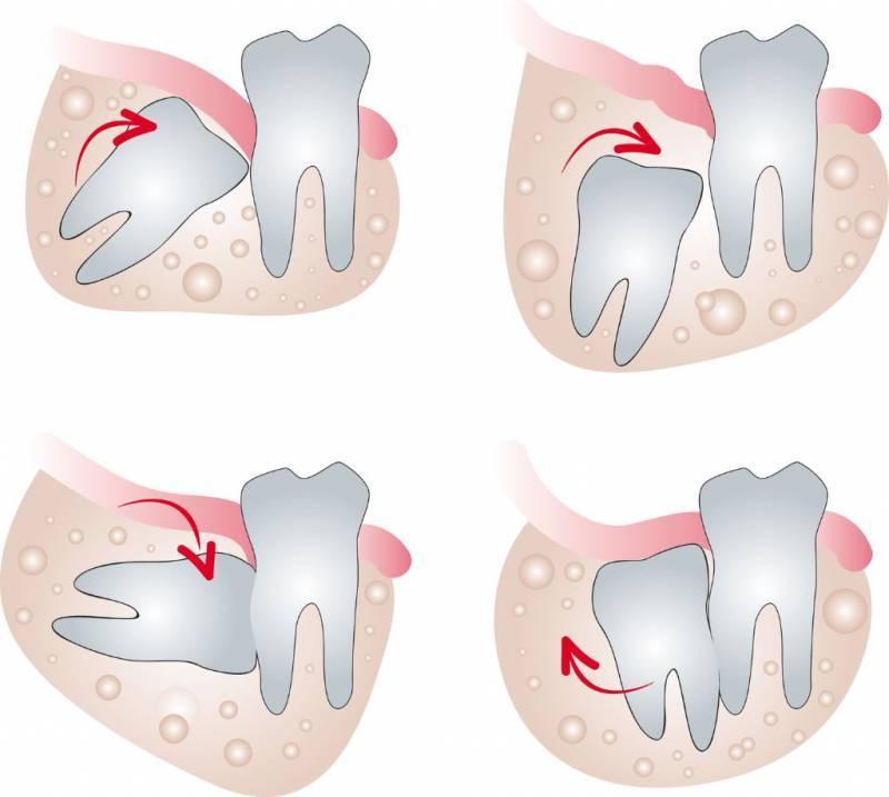 Атравматичное удаление зубов мудрости. правила и рекомендации.
