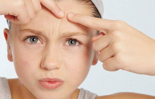 Лечение прыщей у подростков и взрослых: советы дерматолога