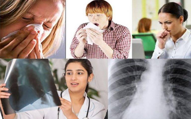 Туберкулез — симптомы и первые признаки, причины, диагностика туберкулёза