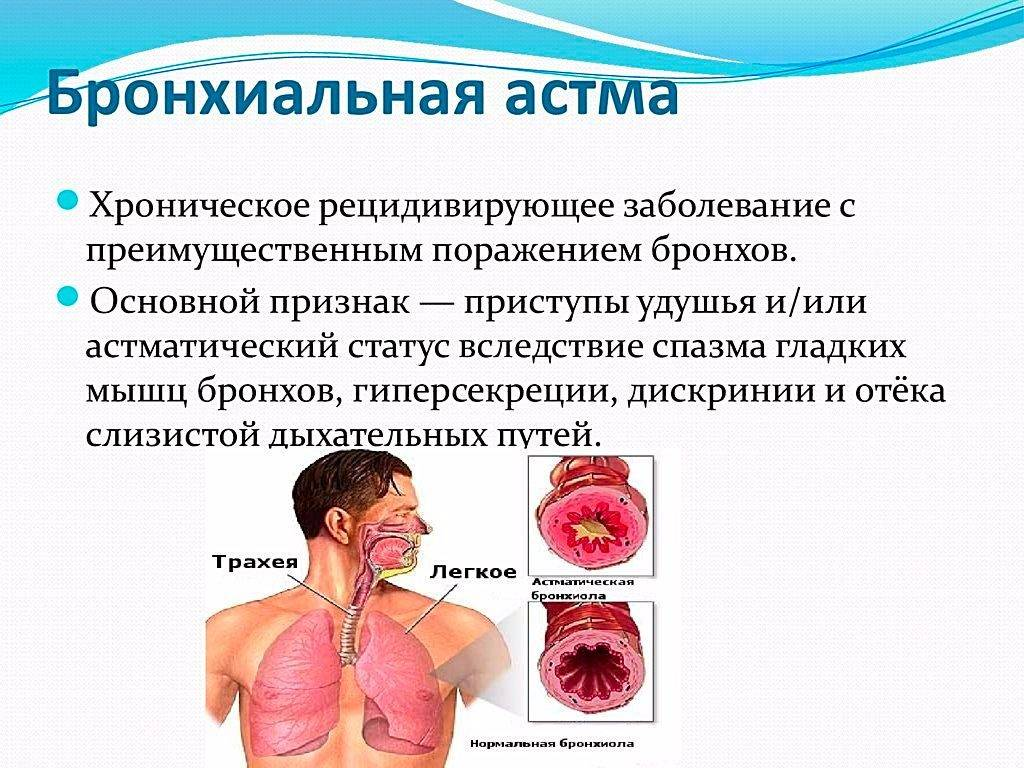 Комок в горле. причины, диагностика, лечение причин, народные методы лечения :: polismed.com